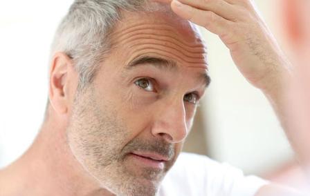 1-Male-disorders-Hair-Loss-Treatment
